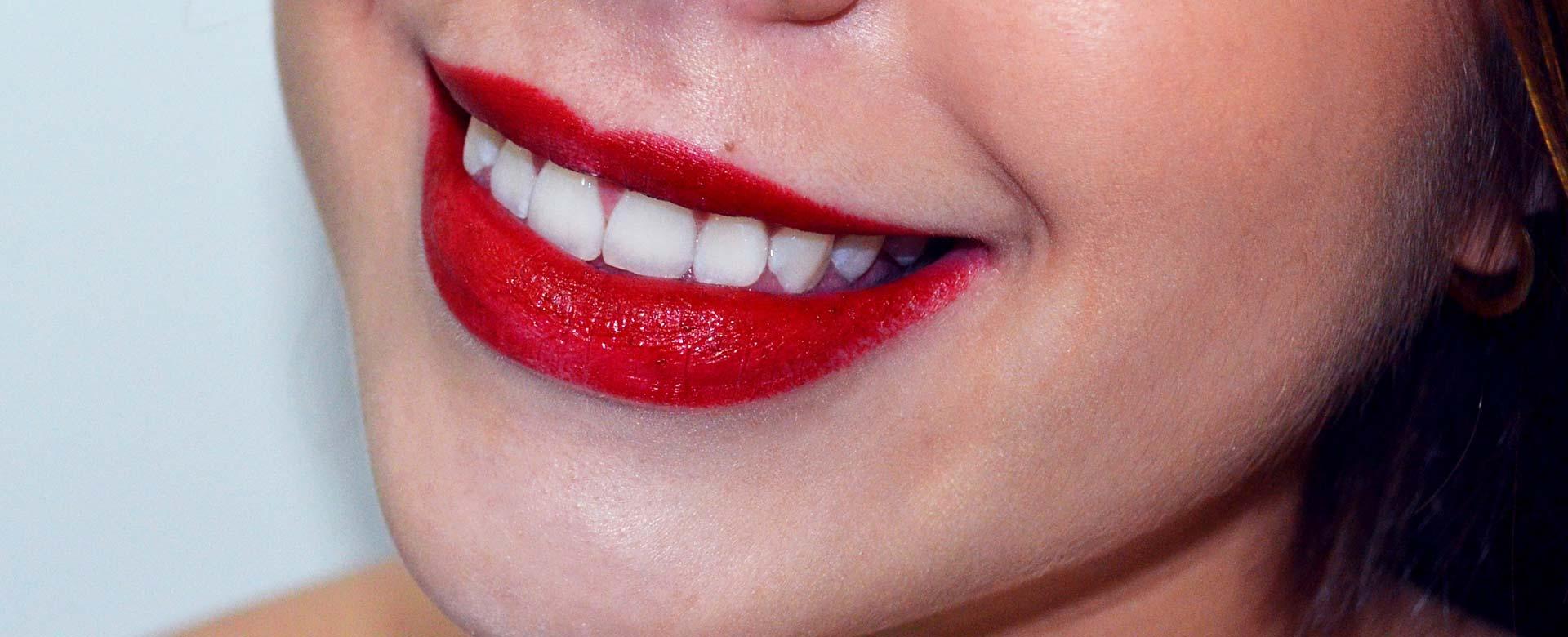 sonrisa-divina-sonrisa
